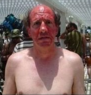 Nice tan!